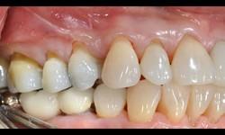Como acalmar dor de dente