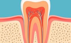Dente com canal doendo