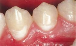 Mancha branca nos dentes perto da gengiva