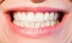 Plano odontológico que cobre implante
