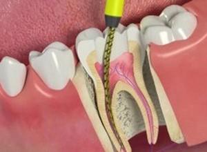 acabar com dor de dente