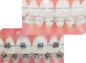 aparelho dental de porcelana