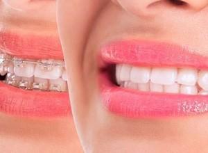 aparelho dentário invisível