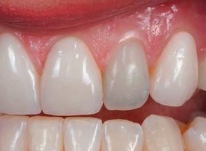 canal dentário valor