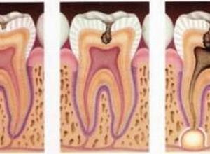 canal dente inflamado
