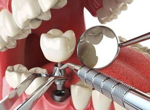 cirurgia de implante dentário
