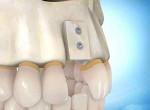 clínica de implantes