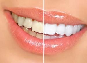 como clarear os dentes rápido