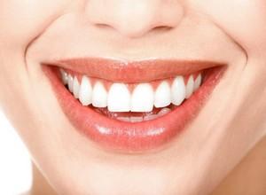 como deixar o dente branco em 1 dia