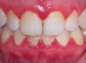 como tratar tártaro nos dentes