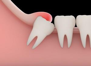dente siso doendo