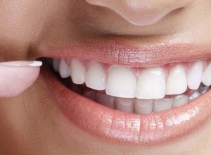 implantes dentários carga imediata