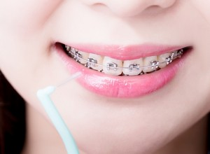 odontologia aparelho
