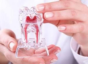 periodontite tem cura