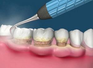 raspagem dentaria