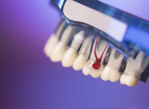sintomas de canal no dente