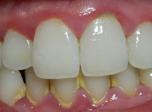 tártaro nos dentes tratamento