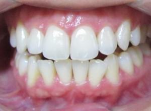 tratamentos para periodontite