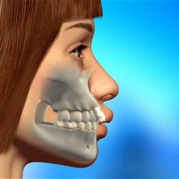 Cirurgia de mandíbula