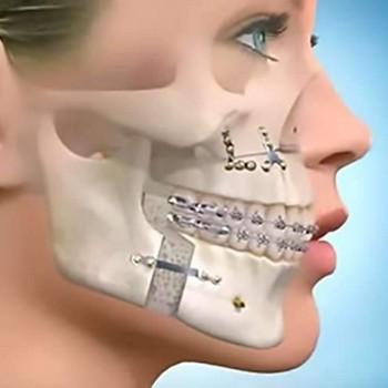 Cirurgia maxilofacial