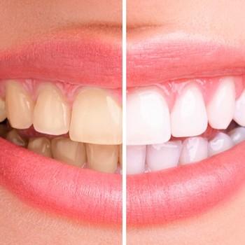 Como clarear os dentes rapidamente